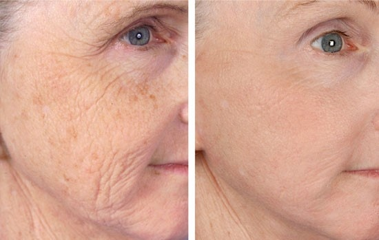 microneedling los angeles